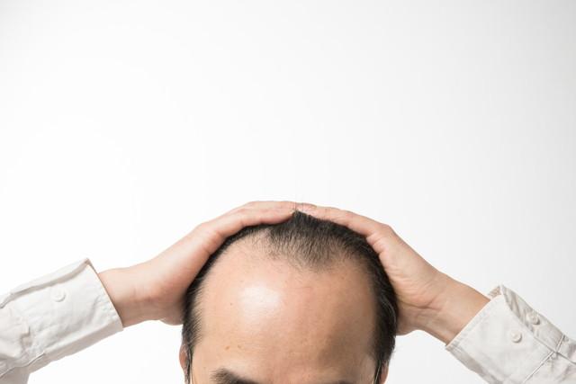 頭皮を抑える男性