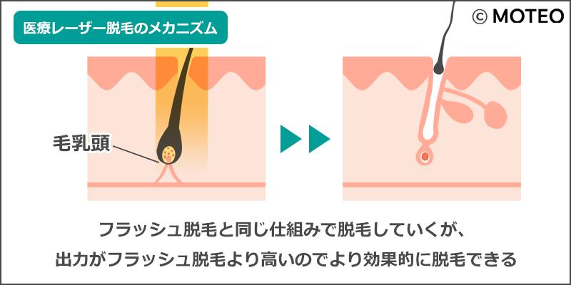 医療レーザー脱毛のメカニズム