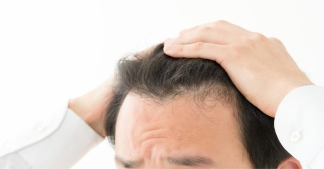 こめかみに皺を寄せて頭皮を抑える男性