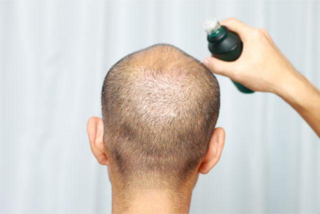 髪の短い男性が後ろを向いて育毛剤をかけている
