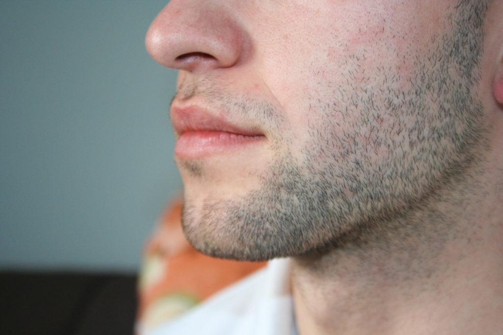 頬から顎まで髭が生えている男性の口元