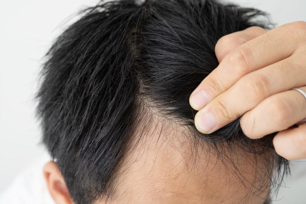 前髪をわけて指で抑える男性