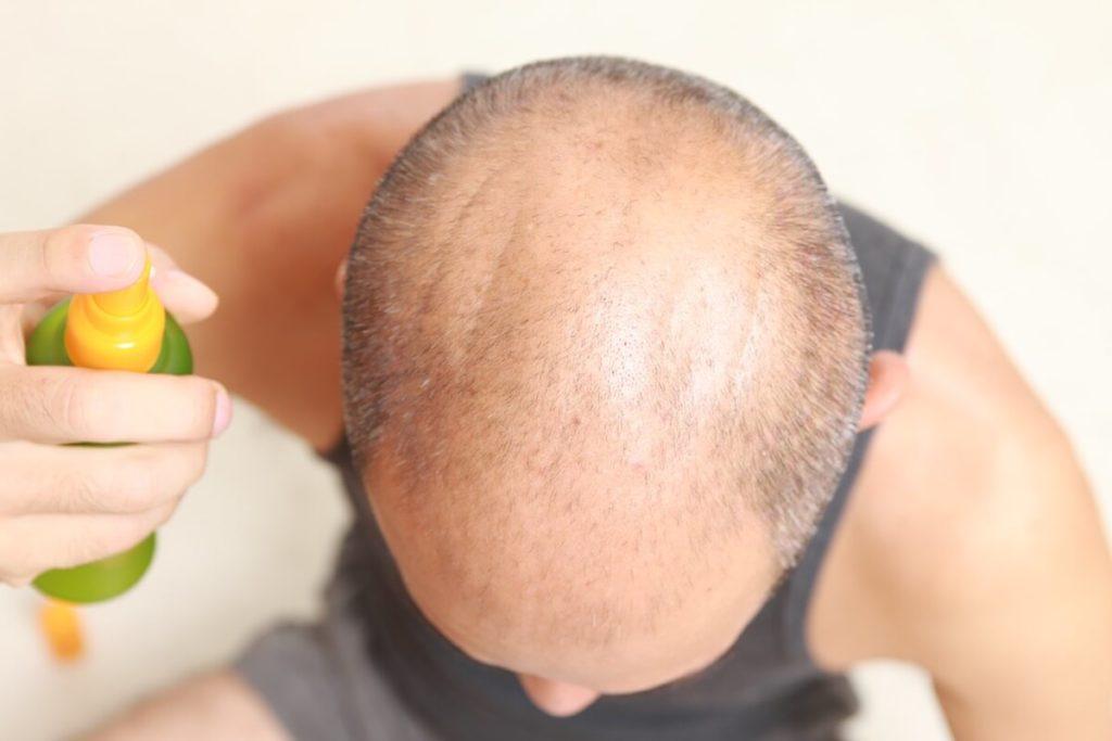 緑のボトルを頭皮にふりかけようとしている髪の薄い男性