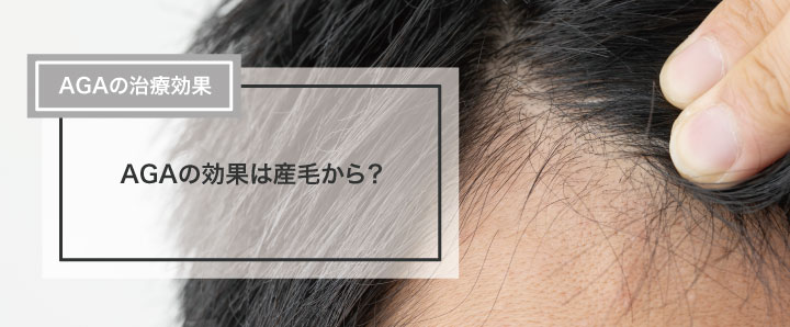 AGAの効果は産毛から?