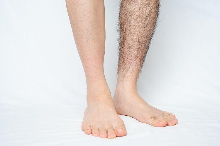 フラッシュ脱毛は永久に脱毛できる?肌へのトラブル・効果・副作用を徹底解説