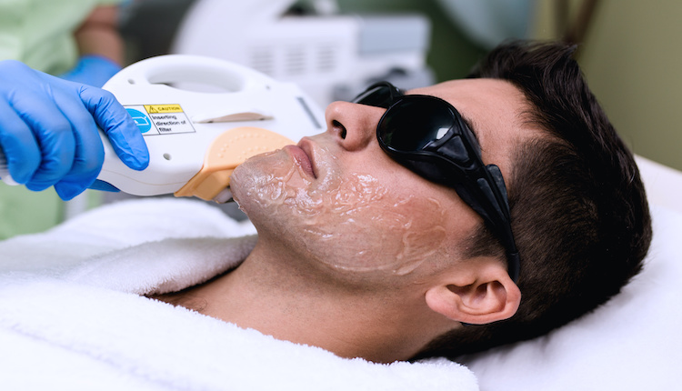 メンズ除毛クリームの施術