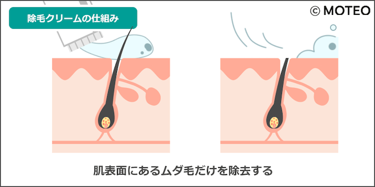 メンズ除毛クリームの仕組み