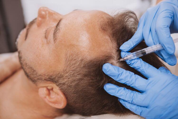 頭皮に注射を刺される男性