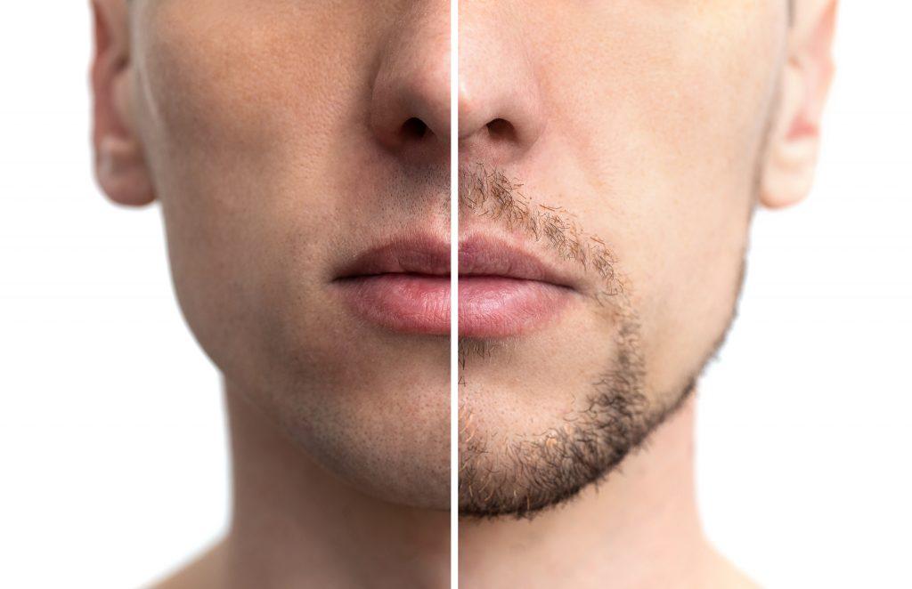 髭を減毛する