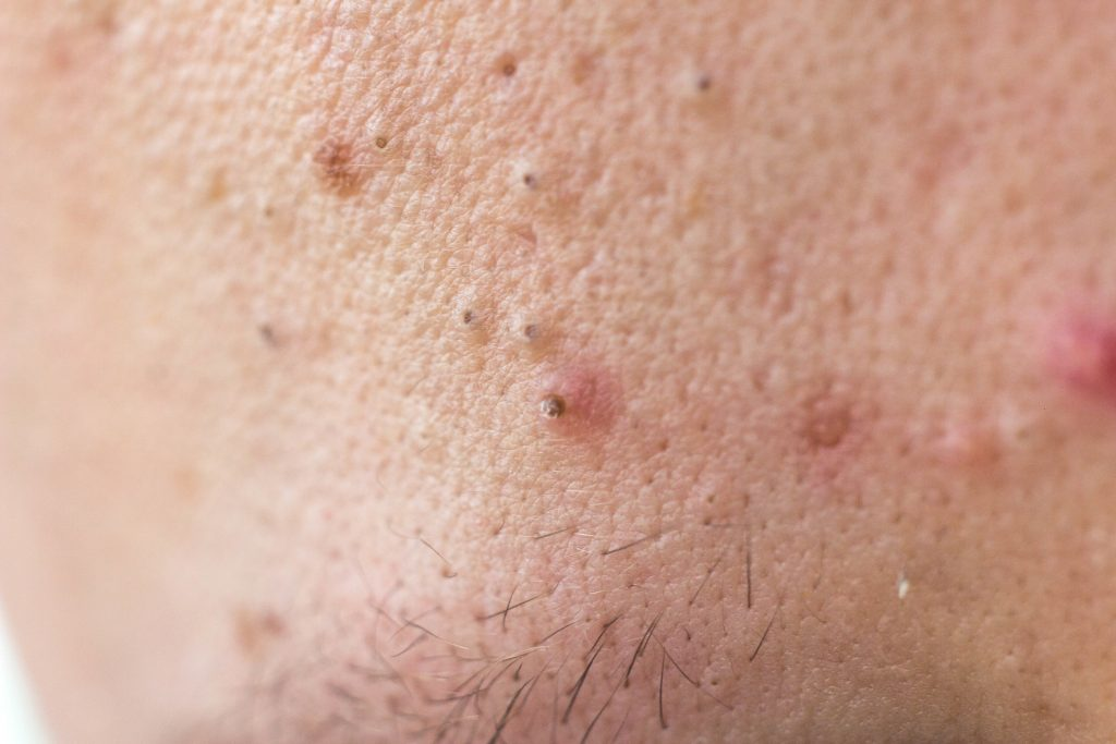 毛嚢炎になった皮膚