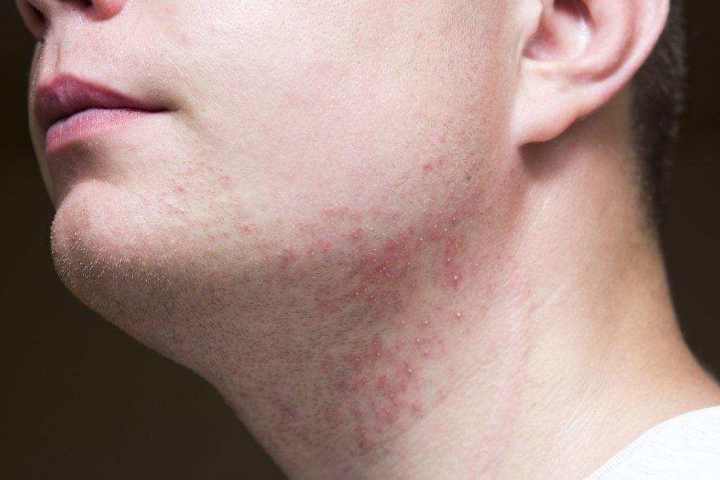 ヒゲ部分が炎症する男性