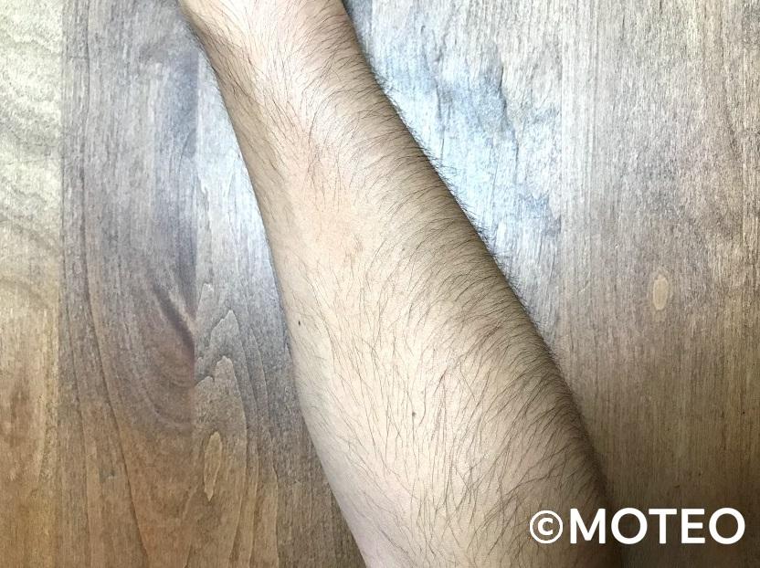 AGA治療_体毛増加(腕)