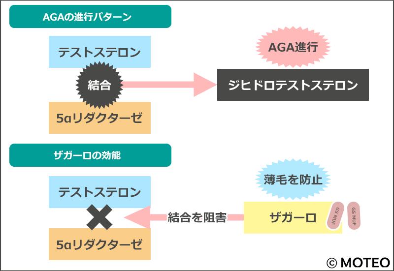 AGAの進行パターンとザガーロの効能のイラスト