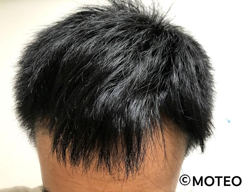 治療10ヶ月(頭頂部)