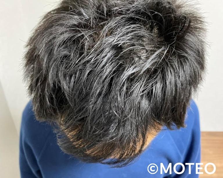 AGA治療12ヶ月(頭頂部)