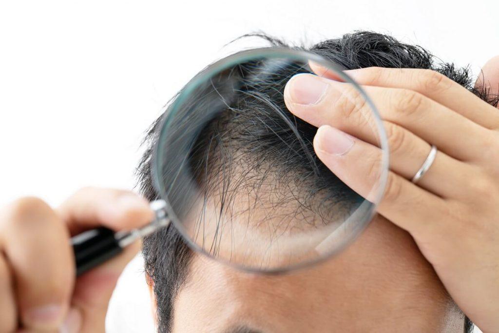虫眼鏡で頭皮を見る男性