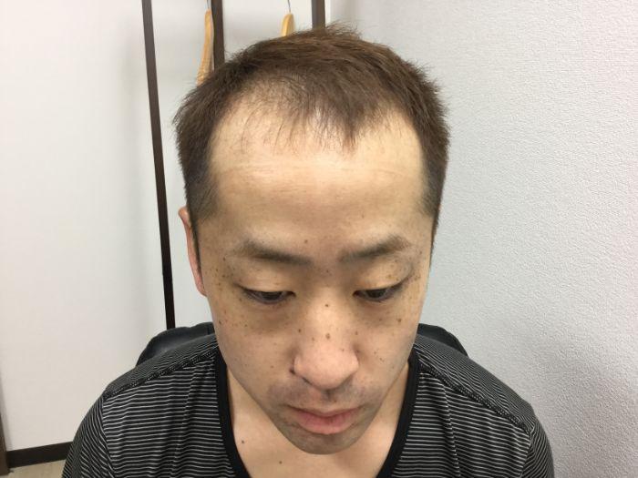 AGA治療前の男性の写真