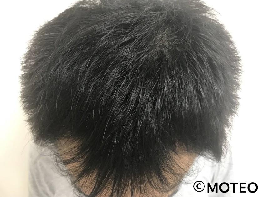 治療2ヶ月(頭頂部)