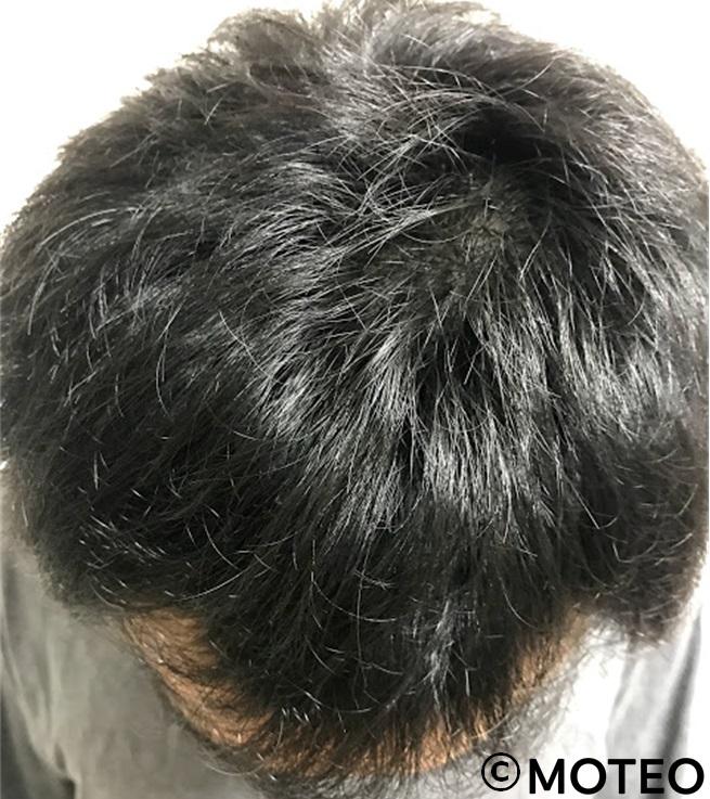 治療3ヶ月(頭頂部)