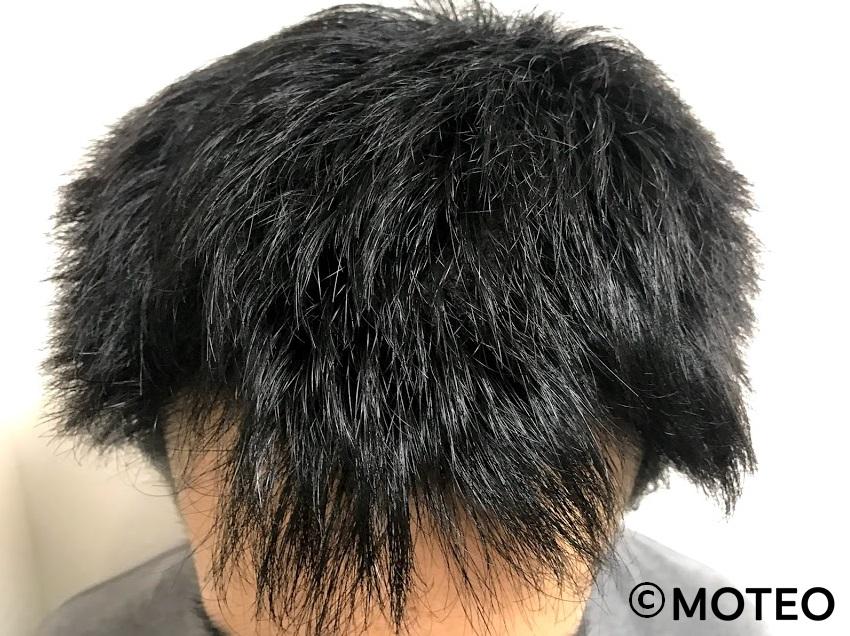 AGA治療6ヶ月(頭頂部)