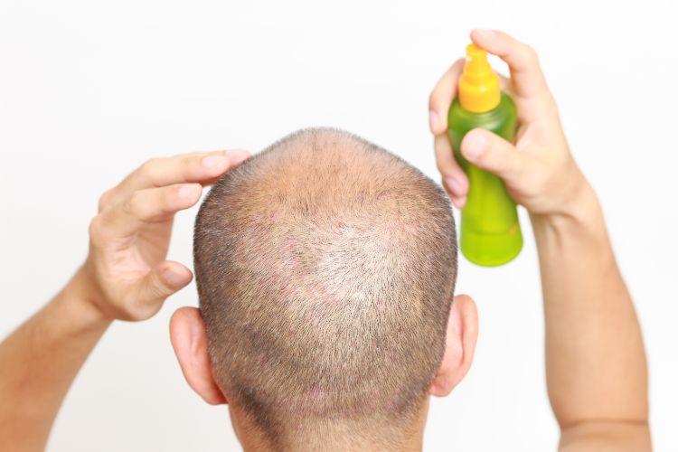 【図解】AGAとは?原因と対策を知れば薄毛・ハゲを根本改善!治療効果・費用・副作用も解説