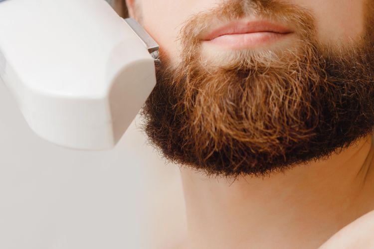 【写真と経過】髭脱毛の2回目の効果!ひげの抜け具合や泥棒ヒゲが起きたか実体験から検証