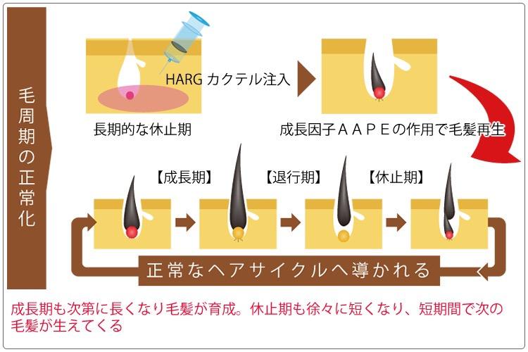 HARG療法と毛周期の仕組み