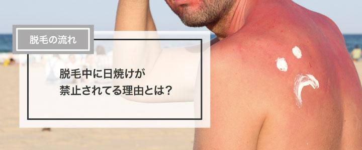 脱毛中に日焼けが禁止されている理由とは?