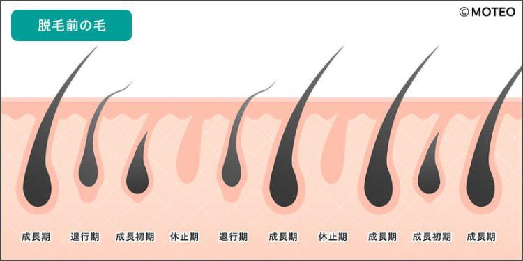 脱毛後のイメージ01