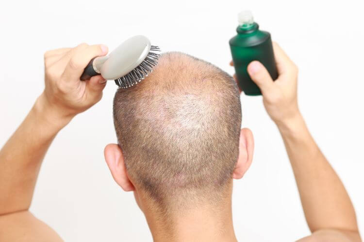 薄毛の頭に育毛剤とクシをあてている男性