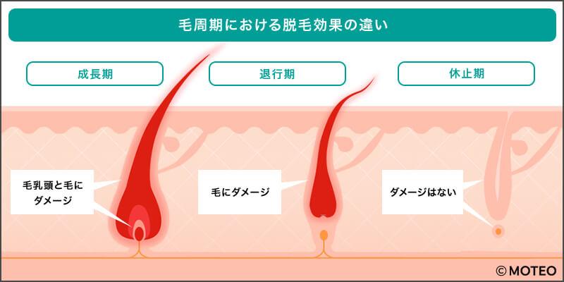 毛周期における脱毛効果の違い