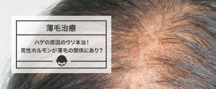ハゲの原因のウソ本当!男性ホルモンが薄毛の関係にあり?