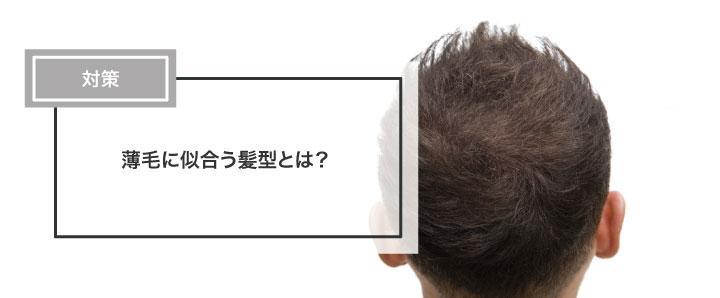 薄毛に似合う髪型