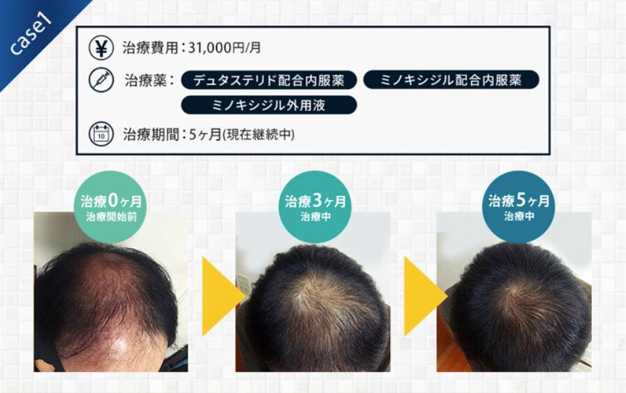 AGAヘアクリニック 治療開始から5ヶ月後のつむじ写真