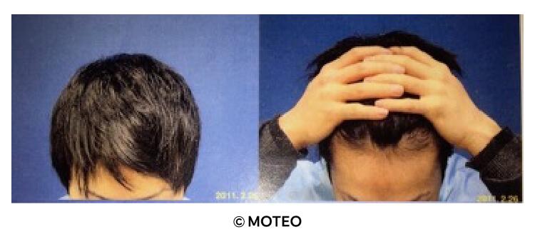 DクリニックでのAGA治療後の頭髪と生え際の現在の写真