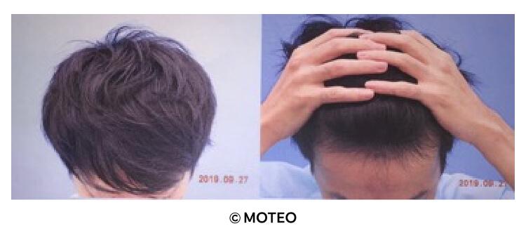 DクリニックでのAGA治療半年後の頭髪と生え際の写真