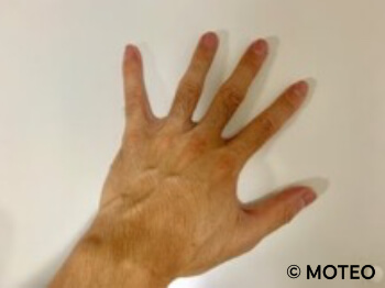 AGA治療により体毛が濃くなった手の甲