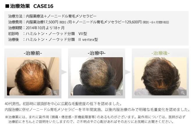 銀クリでAGA治療を受けた男性のつむじ・頭頂部