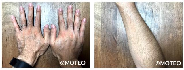AGA治療の際の多毛症が起きている手と足