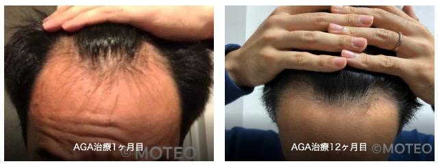 AGA治療経過1年間の生え際の変化