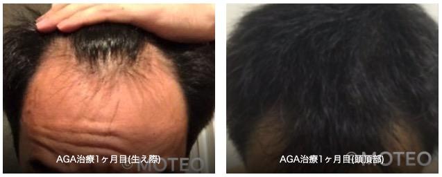 AGA治療経過1ヶ月目