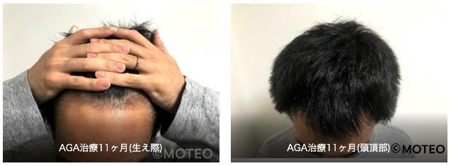 AGA治療経過11ヶ月目