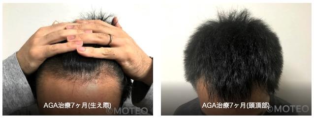 AGA治療経過7ヶ月目