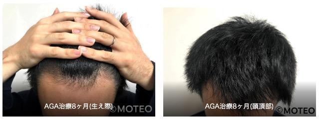 AGA治療経過8ヶ月目