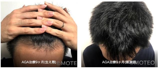 AGA治療経過9ヶ月目