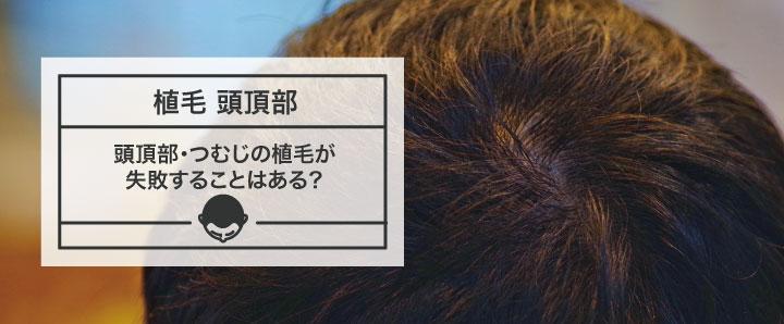 頭頂部・つむじの植毛が失敗することはある?