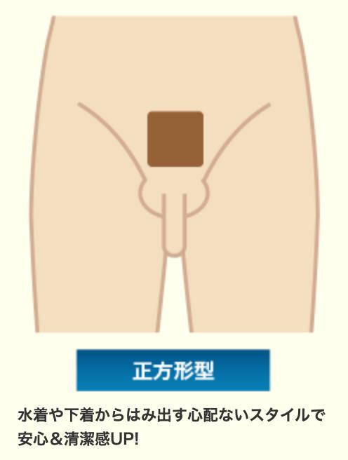 ビキニライン正方形型