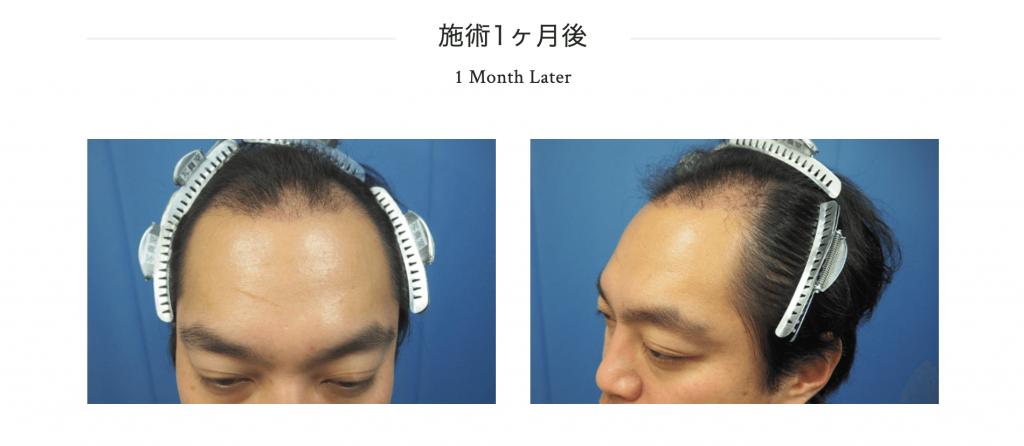 植毛1ヶ月目