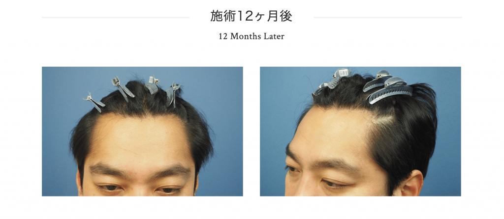 植毛12ヶ月目
