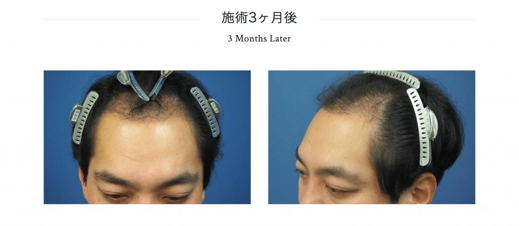 植毛3ヶ月目